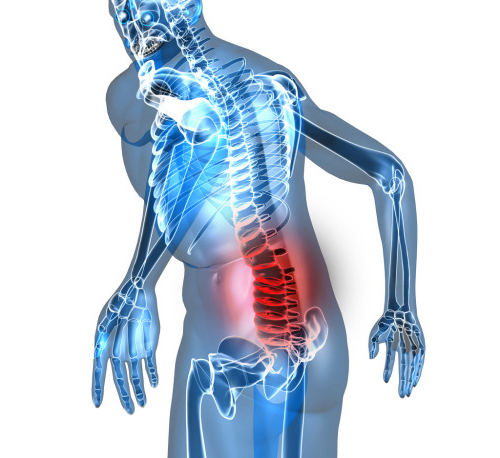 back pain - Causes of back pain