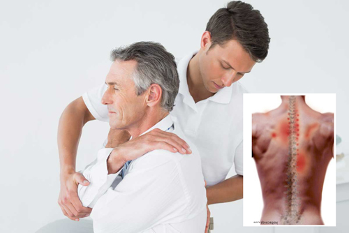 Left Upper Back Pain