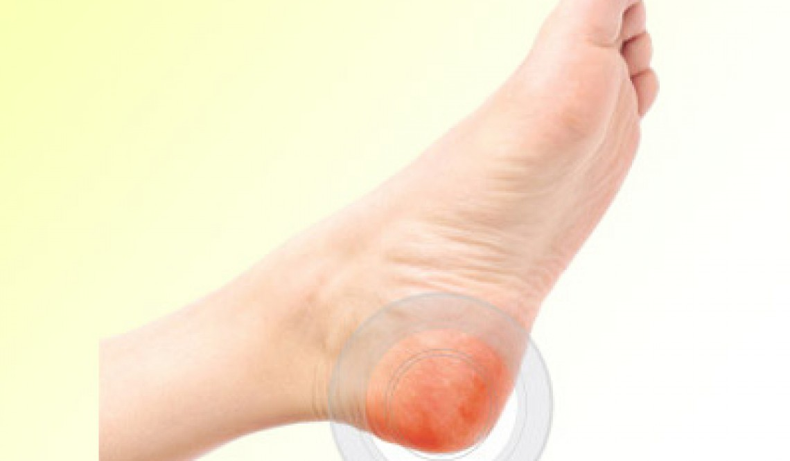 Five reasons why you feel pain in the heel of my foot