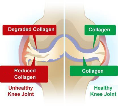 joint pain supplements - collagen