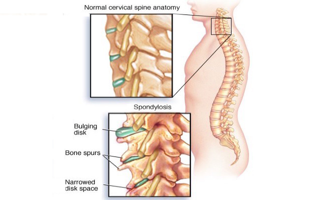 joint pain supplements - spine