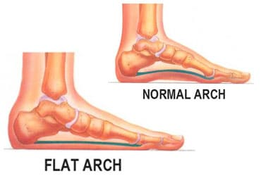 insoles for flat feet - what is flat feet